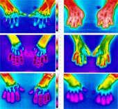 Thermography of healthy control (top), patient with primary Raynaud's phenomenon (middle) and systemic sclerosis (bottom), immediately following submersion of hands into water at 15 degrees C for 1 minute (left) and after 15 mintues rewarming at room temperature (right).