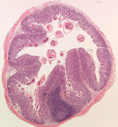 pathology slide