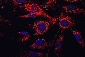 Mitochondria (RED) in human fibroblasts as visualised with MitoTracker