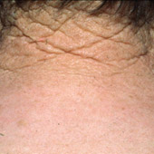 Characteristic deep wrinkles resulting from photoageing of the skin